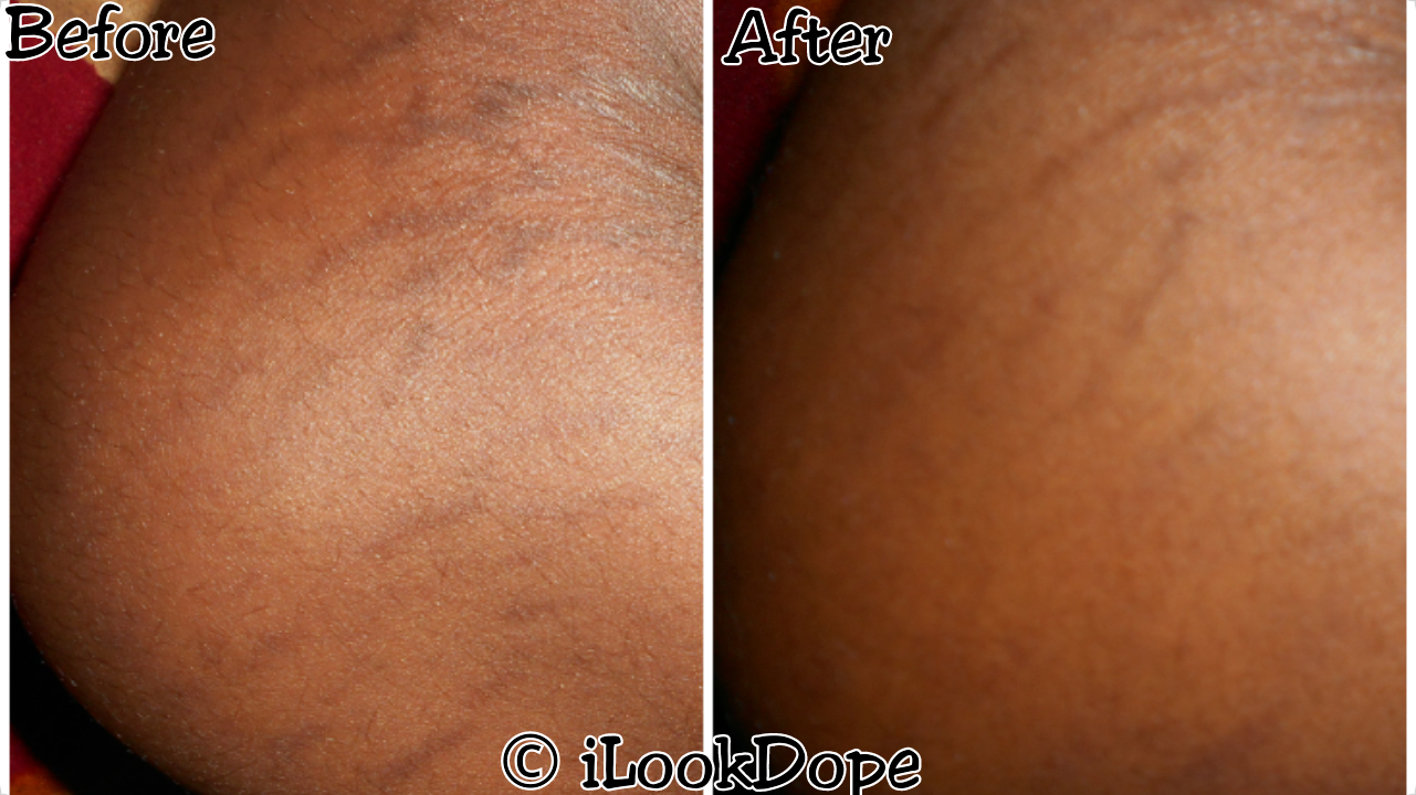 veet gold stretch marks therapy reviews, Veet gold stretch mark cream review, about veet gold stretch marks therapy, veet gold stretch marks therapy cream before and after photos, veet gold stretch marks therapy ingredients, does veet gold for stretch marks works, is veet gold stretch mark therapy safe, ilookdope, ilookdope.com, nigeria beauty blog, nigerian, africa, ilookdope.com