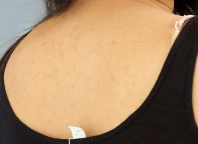 Hot Priyanka Jawalkar naked bareback full of rashes white bra visible