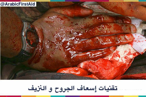 First-aid-wounds-bleeding-إسعاف-الجروح-و-النزيف