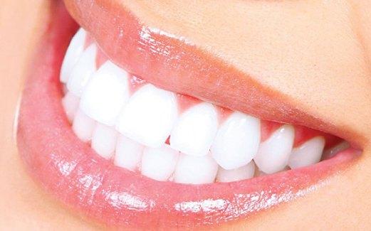 Tips Alami Memutihkan Gigi Dengan Cepat Medisiana
