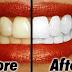 BLANQUEA tus dientes en MINUTOS! (Blanqueamiento Dental Casero)