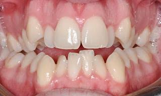 Cách sửa răng khểnh vừa an toàn vừa hiệu quả-1
