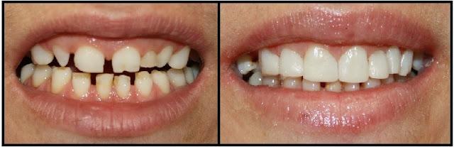 Hình ảnh trước sau trám răng bị mẻ