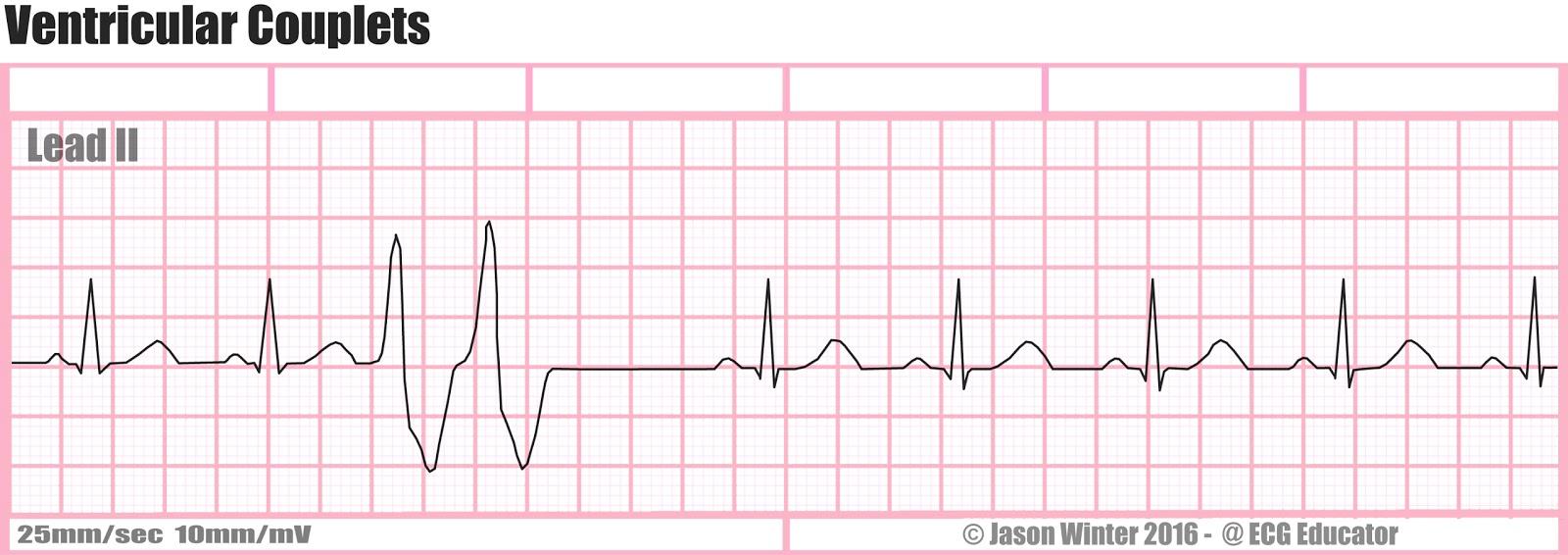 ECG Educator Blog : Ventricular Couplets