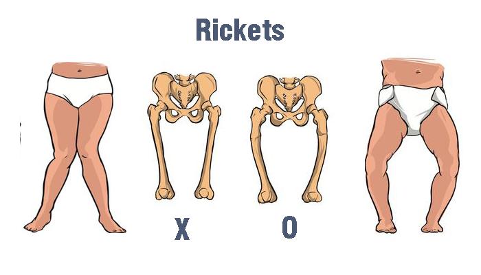 Rickets/Rachitis - www.perpusku.com