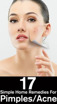 home remedies for acne dark spots
