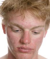acne rosacea hombres