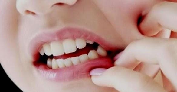 Mengobati Sakit gigi berlubang dengan Jahe lebih cepat