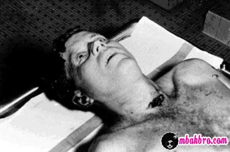 foto john f. kennedy setelah mati