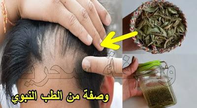 مذكور في القرآن لعلاج تساقط الشعر تنبت وتملأ الفراغات من الامام - وصفة من الطب النبوي