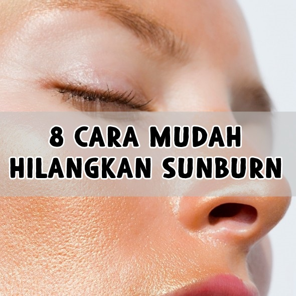 8 Cara Mudah Hilangkan Sunburn