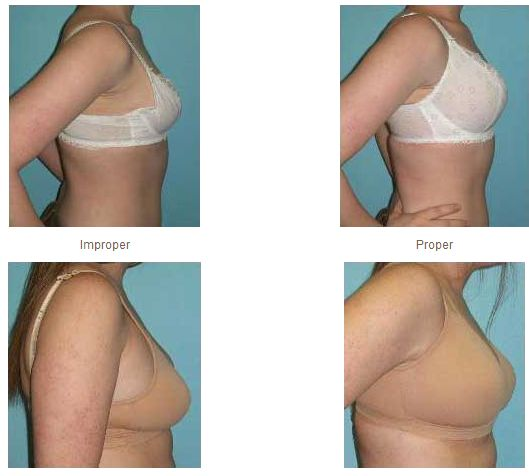 fb2ab41903ac3 Excellent article on the truth about Breast Tissue Migration on ...