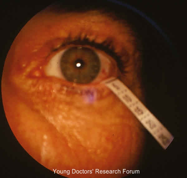 Images For Conjunctival Xerosis Dry Eye And Bitot S Spot