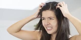 Cara Menghilangkan Kurap Di Kulit Kepala Yang Membandel