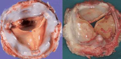 Cours PDF   Prothèses valvulaires cardiaques
