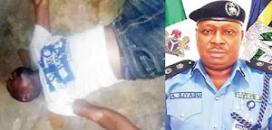 WHAT NONSENSE!! SARS Operatives Scattered Innocent Man's Leg With Bullet