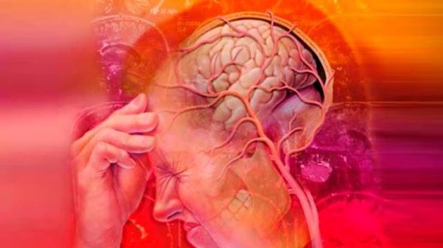 Migrain Penyakit Sepele, Namun Bisa Membunuh Secara Perlahan