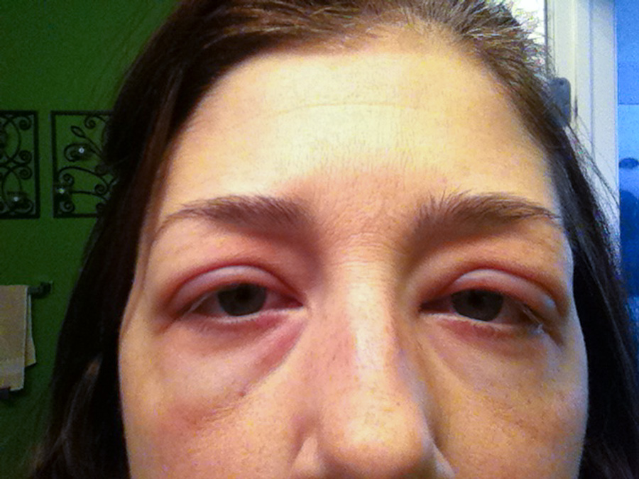 facial swelling from sinus infection jpg 853x1280