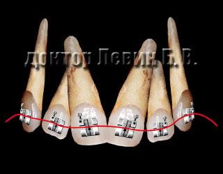 Первые месяцы ортодонтического лечения используются легкие дуги - тонкие и нежные