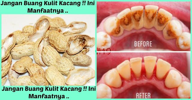 Jangan Buang Kulit Kacang !!Ternyata Sangat Bermanfaat Untuk Membersihkan Plak / Karang Gigi Yang Membandel