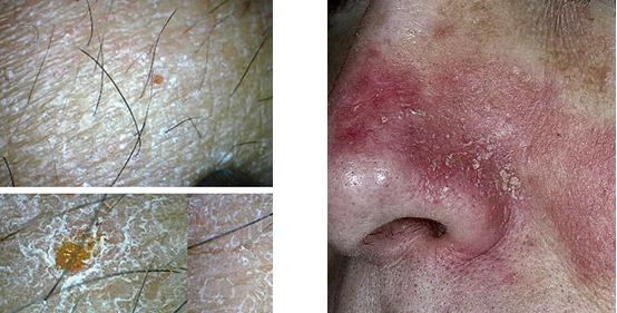 skóra sucha, skóra odwodniona pod mikroskopem, łojotokowe zapalenie skóry,
