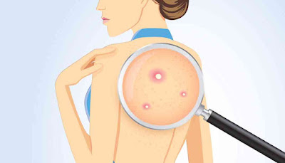 treatments-for-back-acne-1076x615