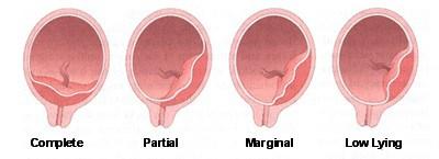 marginal placenta previa - Placenta previa BabyCenter