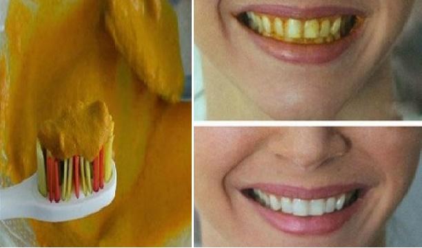 Gigi Anda Kuning Banyak Plak Dan Karang Gigi Gunakan Bahan Alami Ini