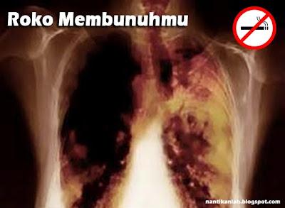 bahaya merokok dapat menyebabkan kanker paru paru