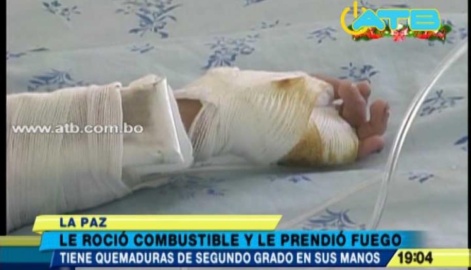 MADRE QUE QUEMÓ LAS MANOS DE SU HIJO CON COMBUSTIBLE DICE ESTAR ARREPENTIDA