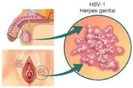 Foto Obat Paling Ampuh Untuk Penyakit Herpes Simplex