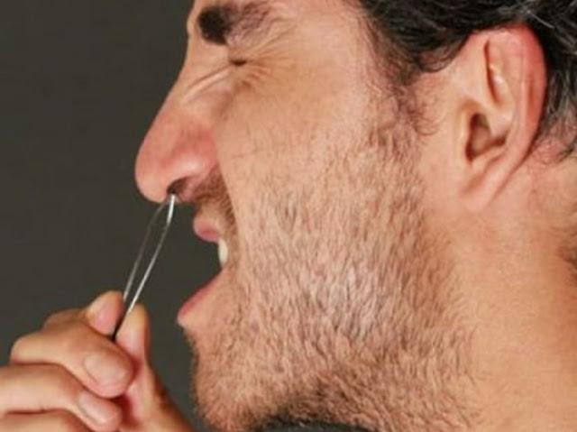 Guía de depilación facial: Cómo eliminar todo el vello no deseado de su cara