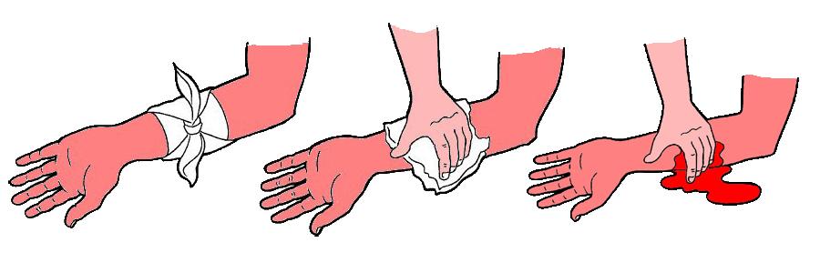 stop-bleeding-إيقاف-النزيف