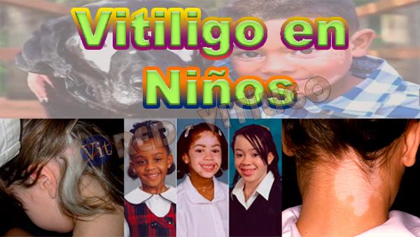Vitiligo en Niños y su Tratamiento