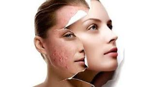Faire disparaître l'acné avec un blanc d'oeuf