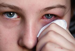 Các bệnh về mắt, mũi thời điểm giao mùa