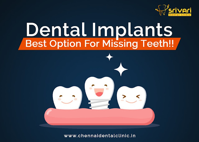 affordable dental implants in chennai