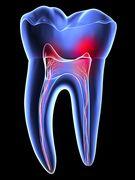Maux de dents: Causes, traitements et prévention