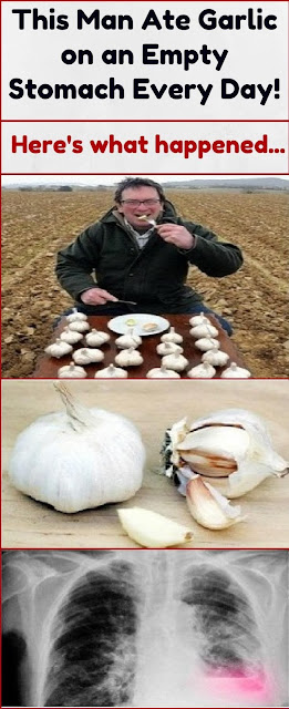 This Man Ate Garlic on an Empty Stomach Every Day! Here's What Happened…