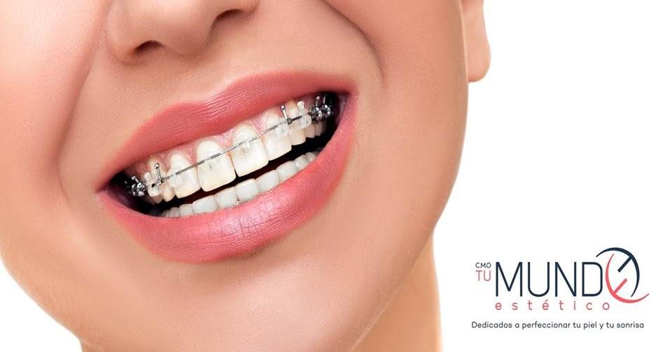 Dr ivan castro cu l es el proceso para un tratamiento for W de porter ortodoncia