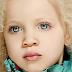 La niña albina de padres negros mas famosa del mundo