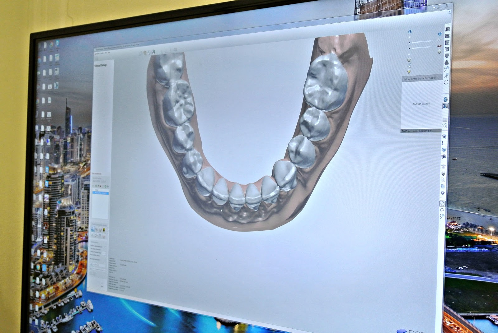 Smile Confidently with Smile Design at Ewan Bramley Dental Care Newcastle