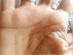 combatendo o ressecamento das mãos