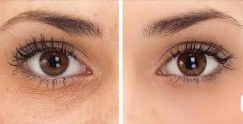 تمتعي بعيون جذابة وتخلصي من الهالات السوداء بشكل نهائي من خلال بعض الوصفات الطبيعية