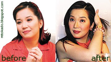 5 Filipinos Who Proudly Admitted They Had Plastic Surgery! Meet The Retokados and Retokadas!