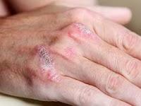 Cara Mengobati Penyakit Dermatitis