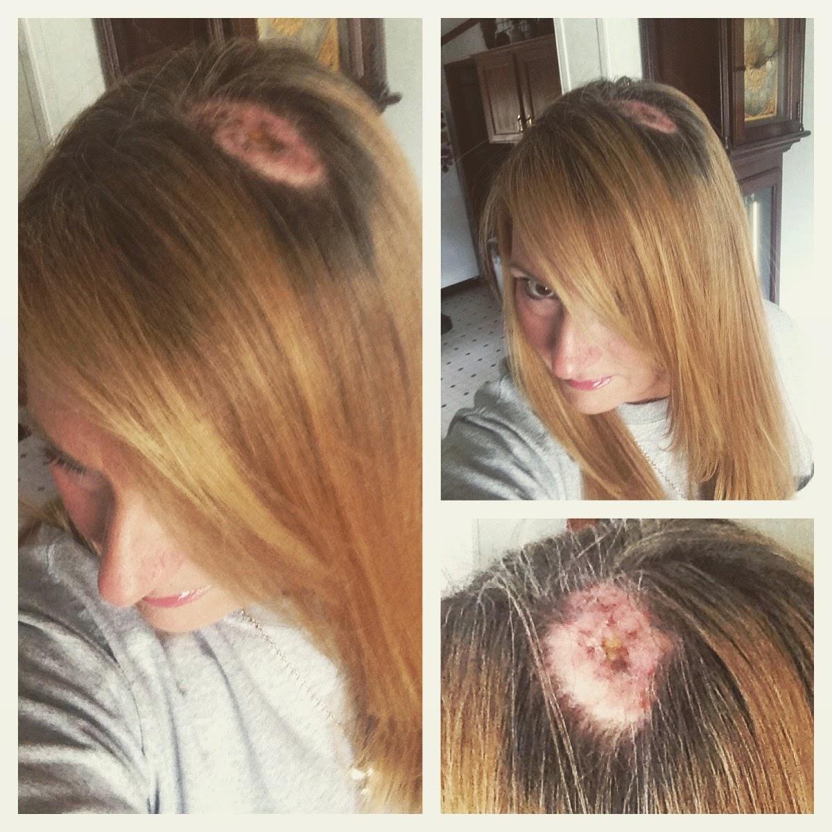 womens haircuts to hide hair loss