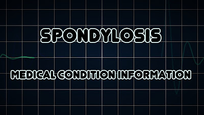 ICD 10 code for lumbar spondylosis