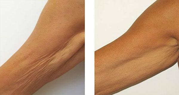 5 домашних рецептов для удаления морщин и дряблой кожи на руках! Ручки будут, как в 20 лет!