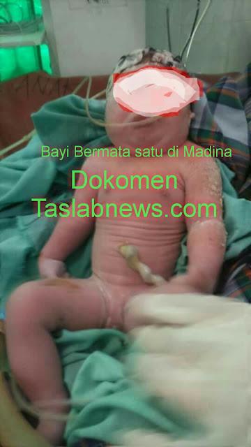 Bayi bermata satu di Madina.